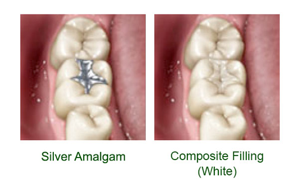 silver amalgam compared to composite filling