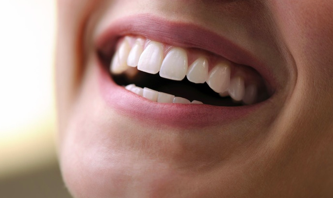 Tips For Healthy Teeth Whitening