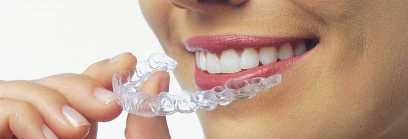 Invisalign Woodvale
