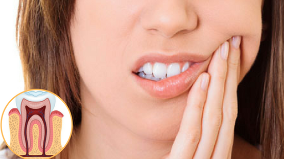 All You Need To Know About Root Canal Surgery